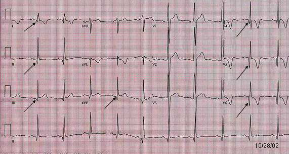 Sudden Cardiac Death in Young Athletes | Pediatrics Clerkship | The ...