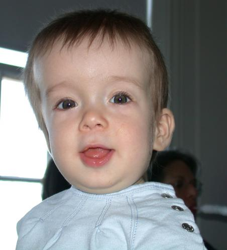 http://upload.wikimedia.org/wikipedia/commons/5/55/Cranialsynostosis.jpg