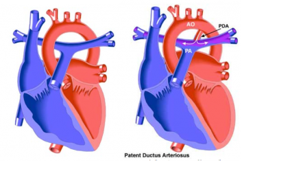 Patent Ductus Arteriosus | Pediatrics Clerkship | The University ...
