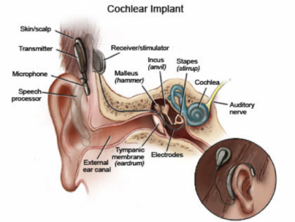 cochlear implant_0_0.png
