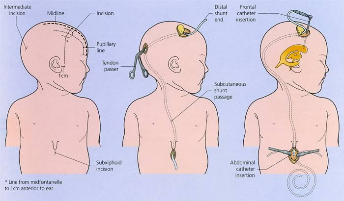 ventriculoperitoneal shunts | pediatrics clerkship | the, Skeleton